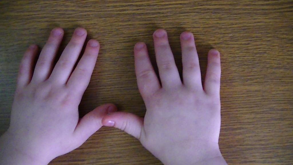 Как сделать руки опухшие