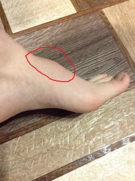 Почему появилась шишка на ноге (под кожей)? Что делать?