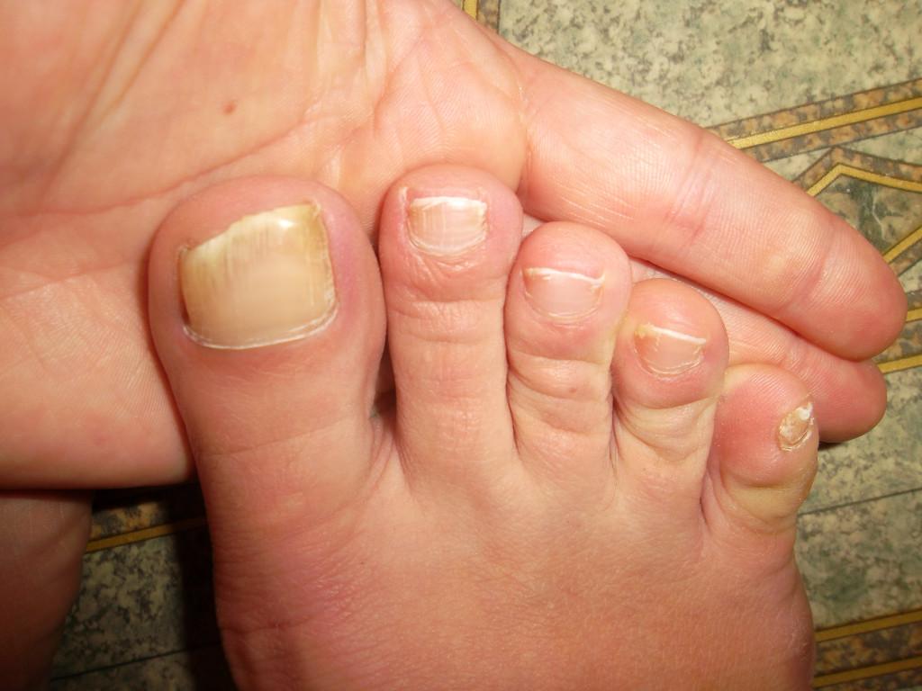 Ногти на ногах слоятся и ломаются