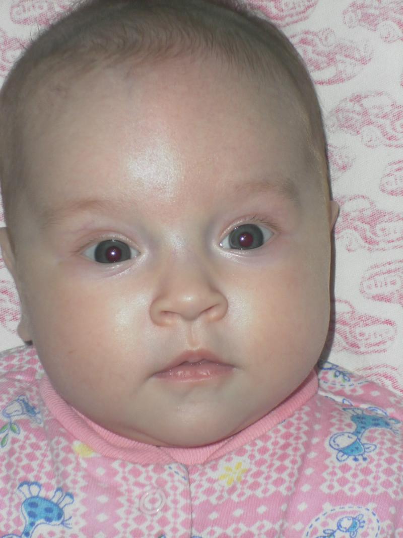 Если у ребенка синеют губы при температуре