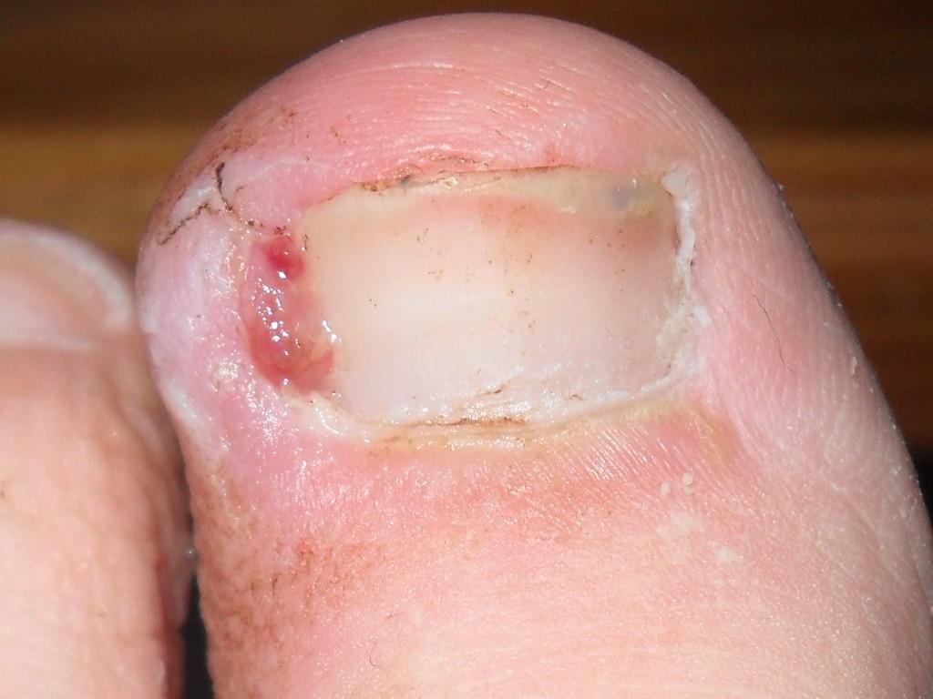 остеоартроз на большом пальце ноги