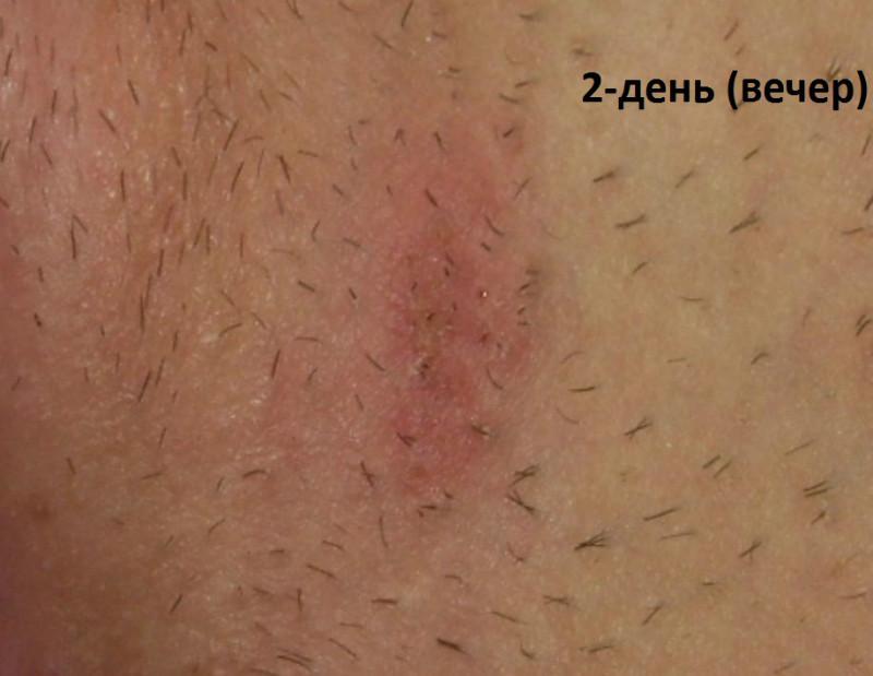 сыпь после бритья в зоне бикини