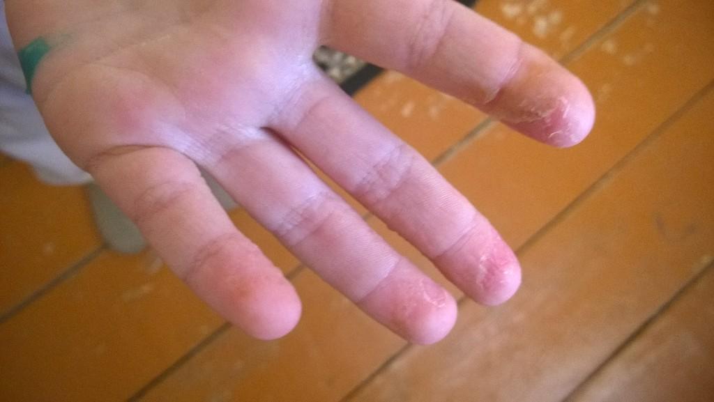 Поляна современный у ребенка кожа на пальцах облазит заявку