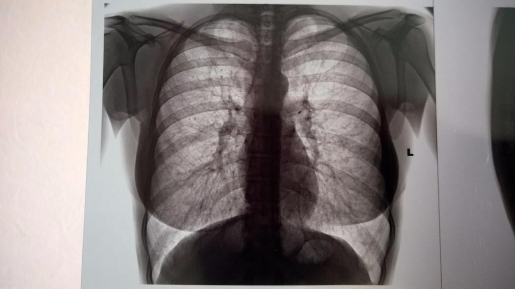 эмфизема легких рентген фото