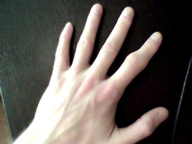 Нарост на суставе пальца руки после травмы болят суставы рук причины и как лечить