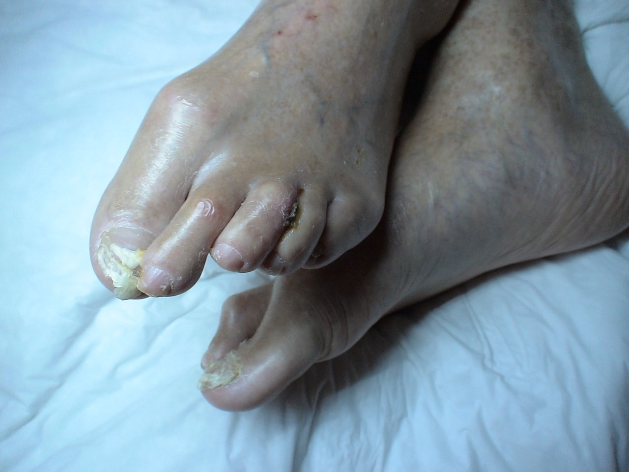 Что делать если болят подушечки ног около пальцев