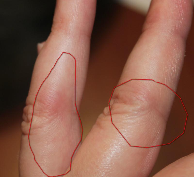 Красные шишки на суставах пальцев упражнения после вывиха локтевого сустава видео