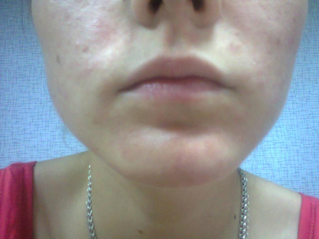 аллергия на коже лица лечение