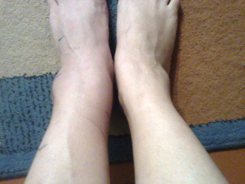 Как снять отек ноги при переломе в домашних условиях