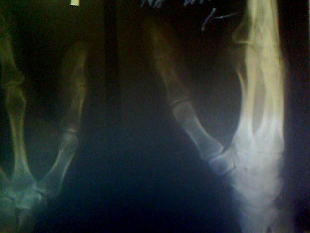 Болит сустав большого пальца на руке лечение причины боли