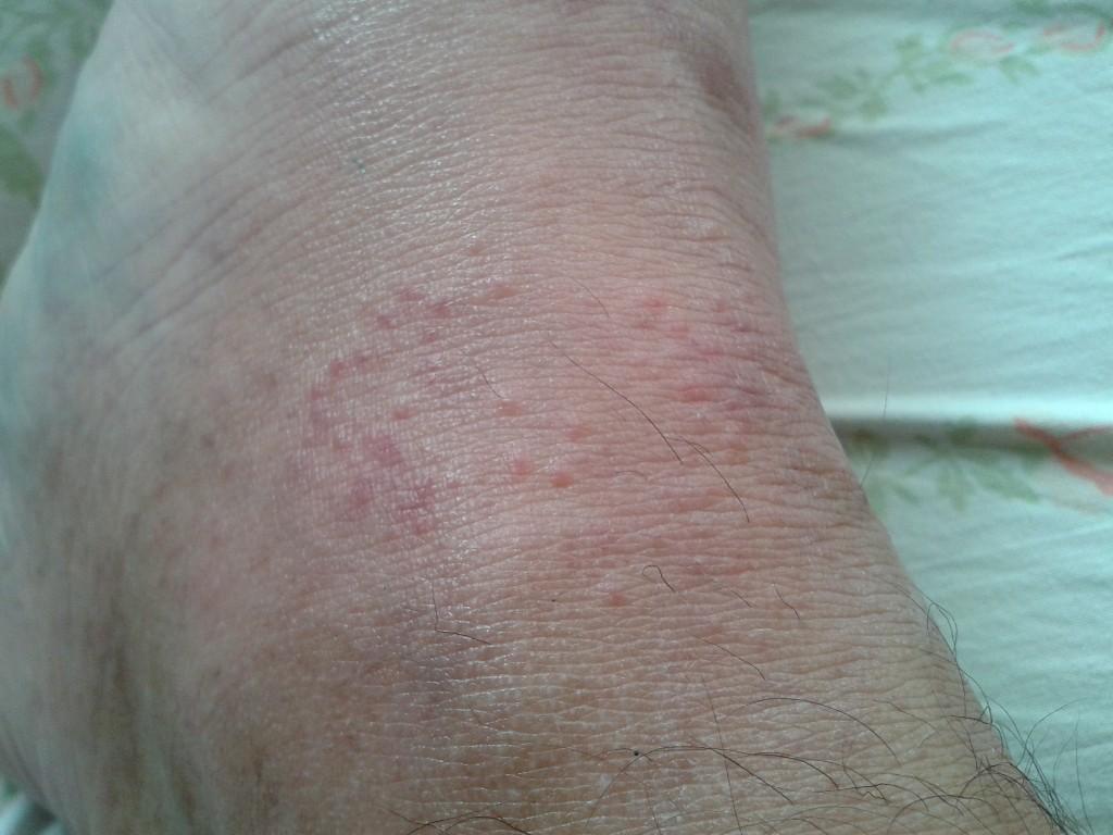 сколько выходит аллергия