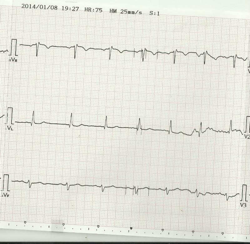 сердце 62 удара в минуту Урежение пульса, слабость, о чем говорит? 56-61 удар в минуту ...