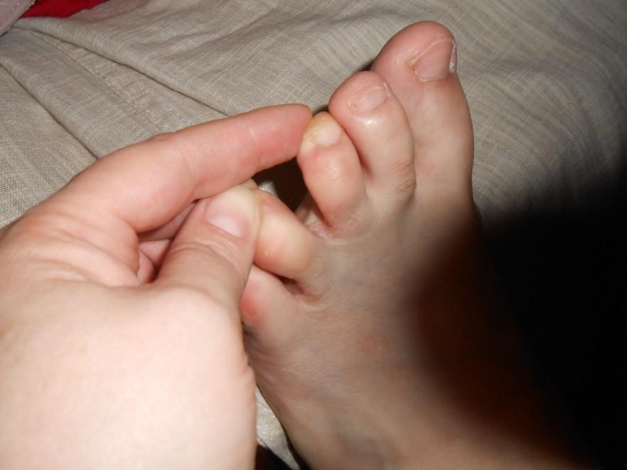 Чешутся пальцы на ногах у ребенка
