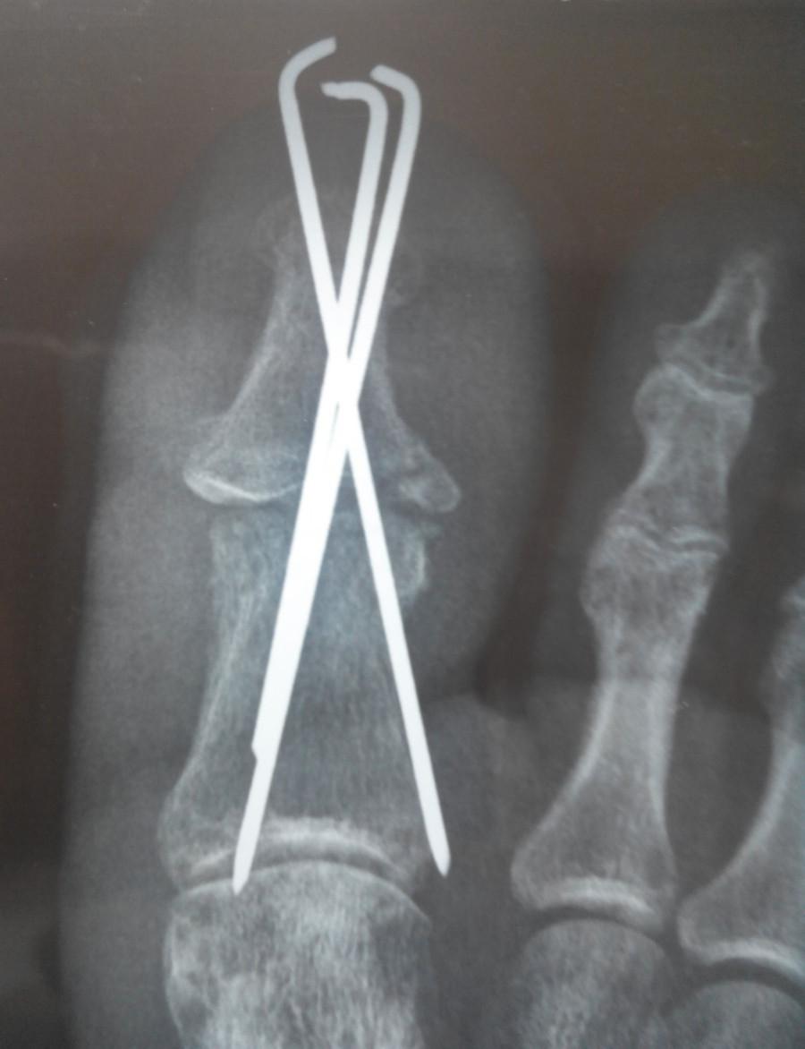 Сильный ушиб косточки на ноге