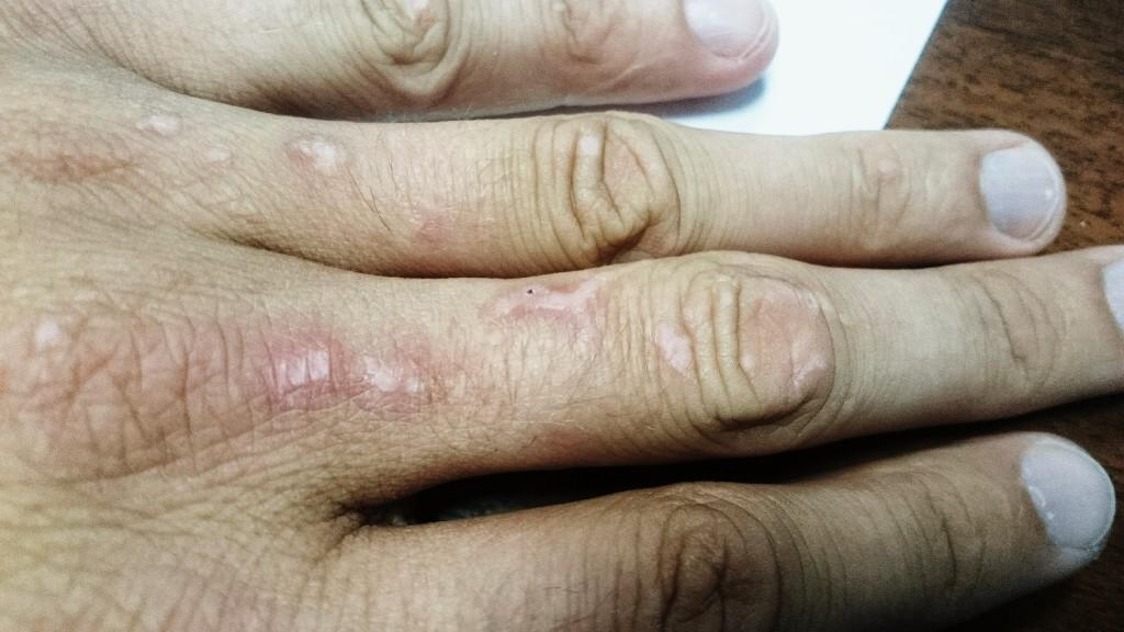 Аллергия на коже у ребенка на воду