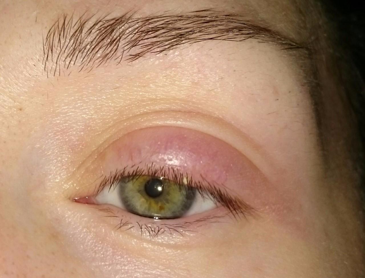 аллергия на верхнем веке глаза