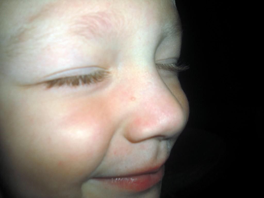 Прыщи на носу у ребенка до месяца