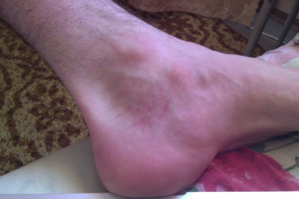 фото гноя в ноге