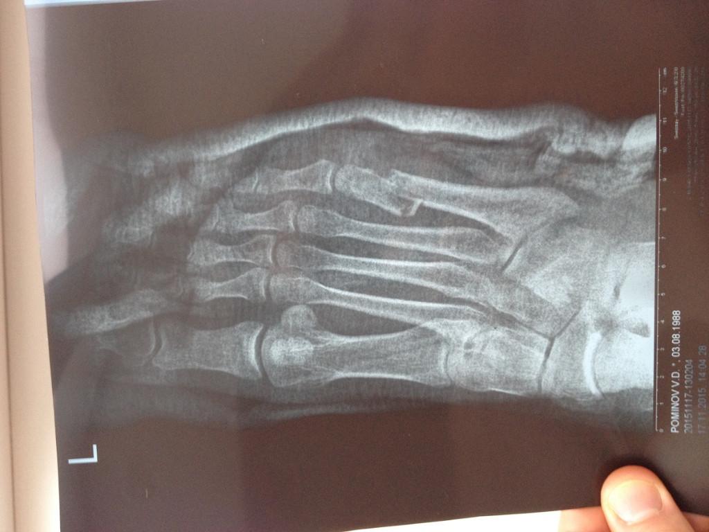 Перелом плюсневой кости стопы симптомы лечение реабилитация