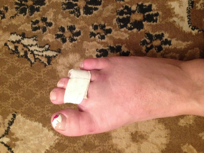 Ушиб пальца на ноге: что делать в домашних условиях 15