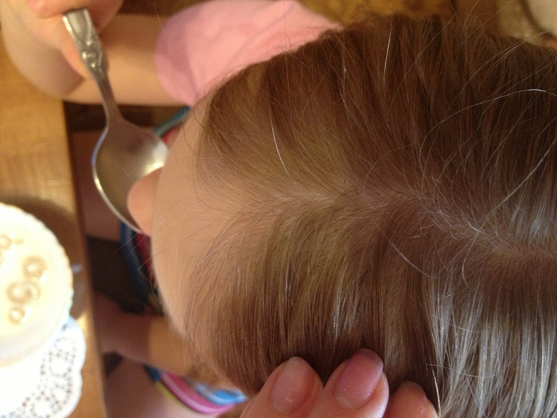 Чёрные шарики на волосах