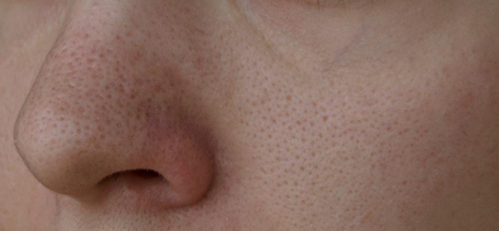 Рубец от воспалившейся поры на лице