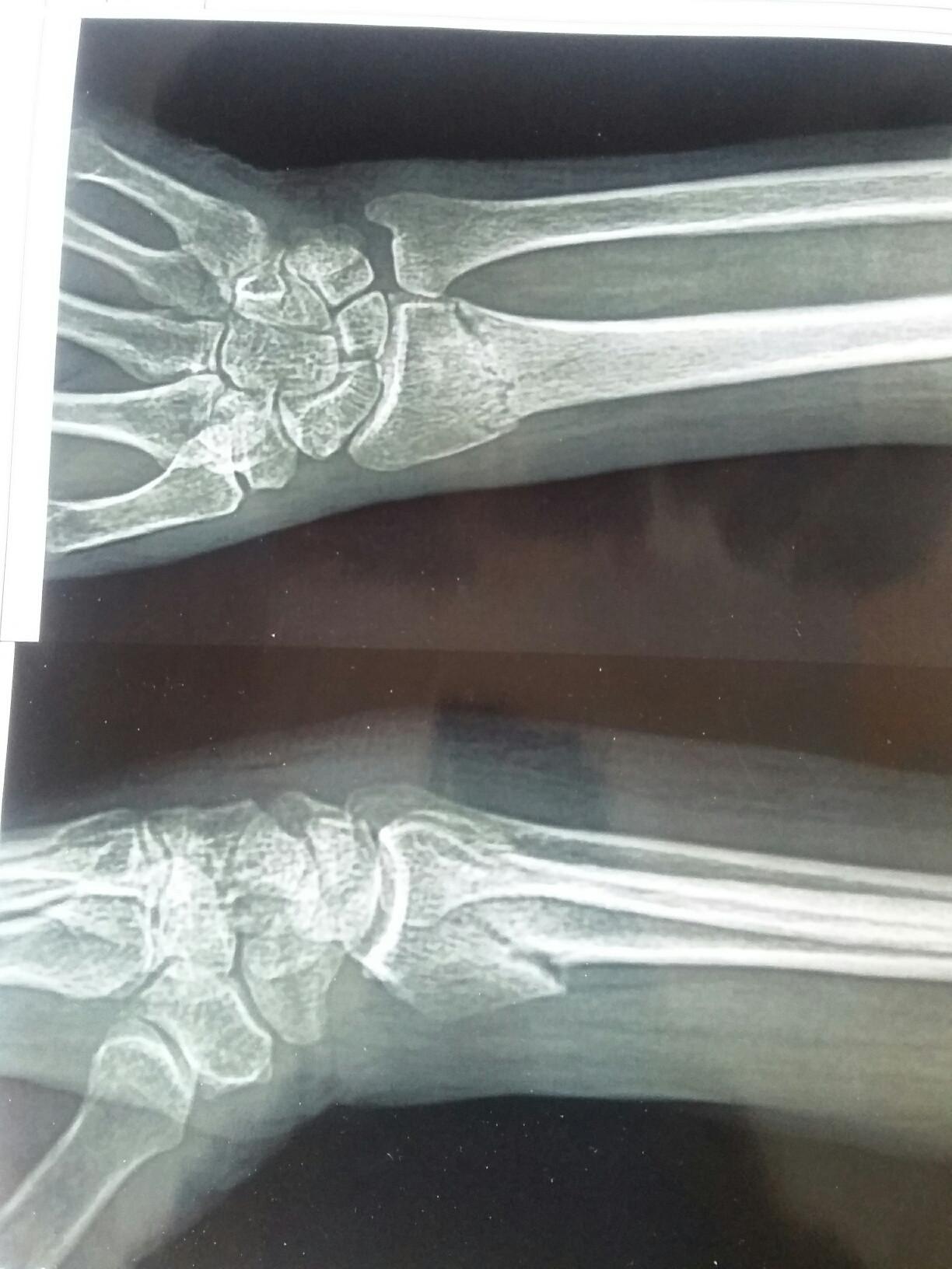 Перелом нижнего конца лучевой кости фото