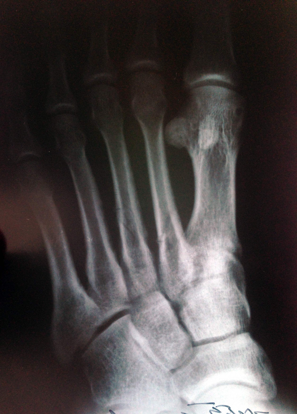 фото рентген стопы