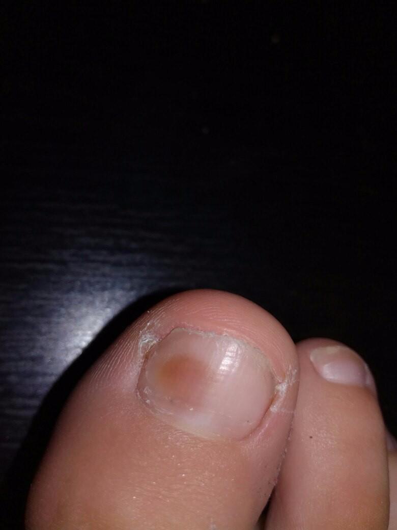 Темные пятна на ногтях на ногах