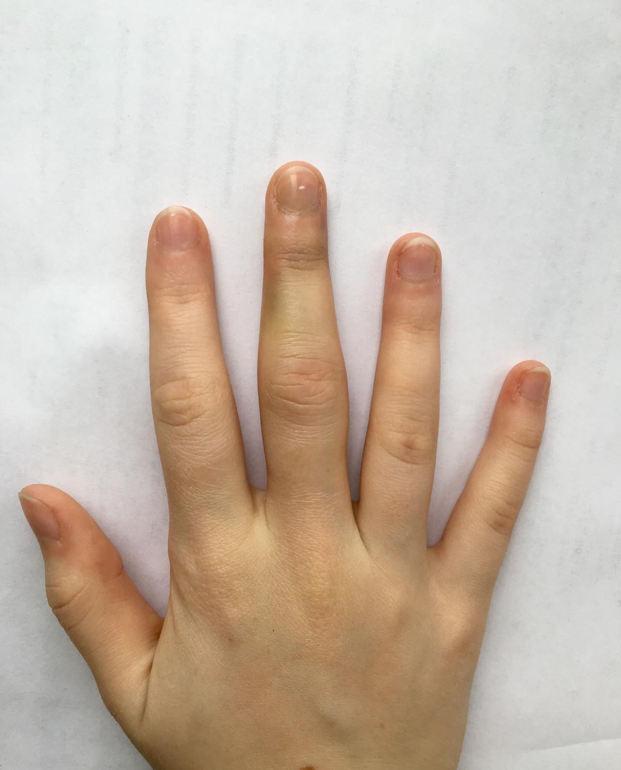самые теплые фото лопатообразной руки граница видна