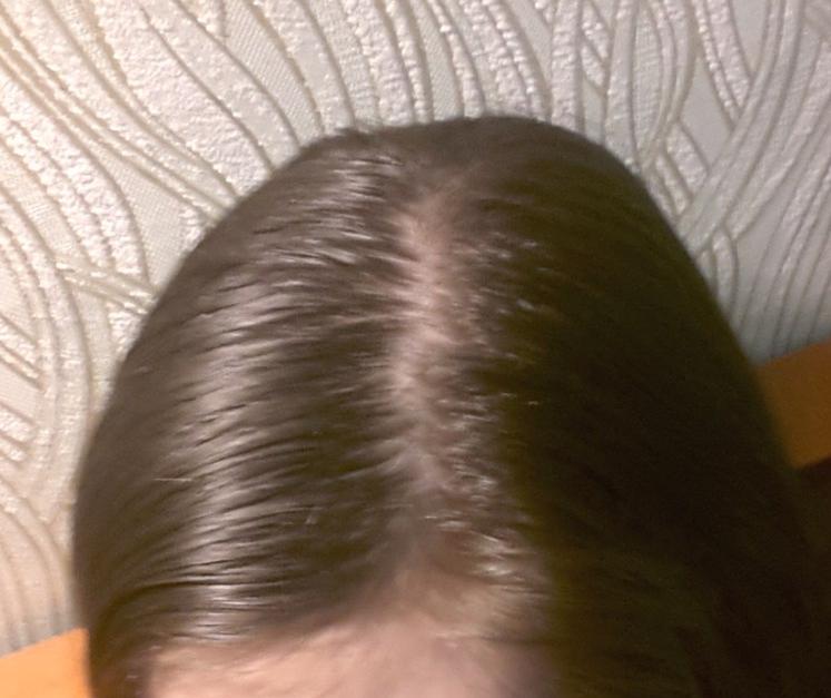 продукты при выпадении волос у женщин