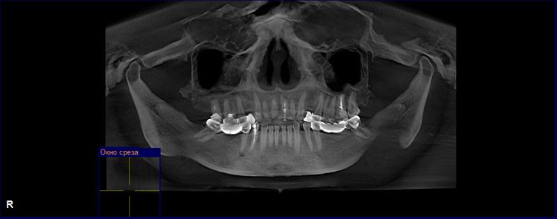 Рентген зубов если не знала что беременна