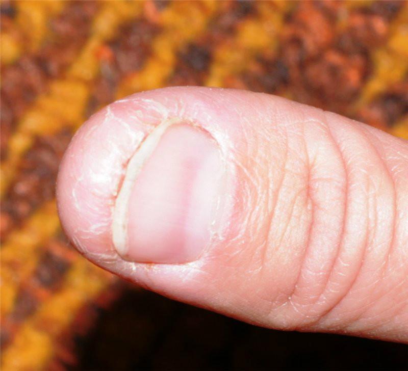 Трескается кожа под ногтями