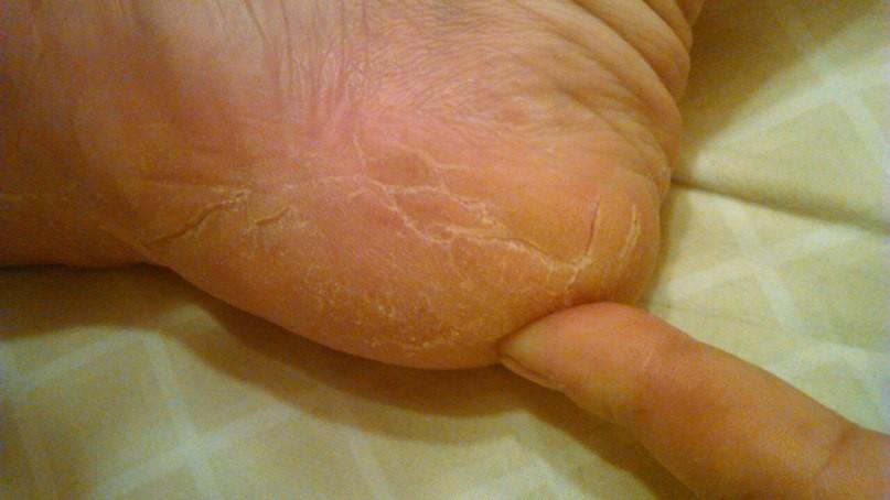 участки сухой кожи на стопах диагноз лечение Сафин, брат
