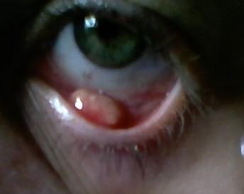 аллергия веки глаз