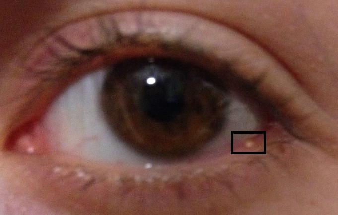 аллергия на нижнем веке глаза