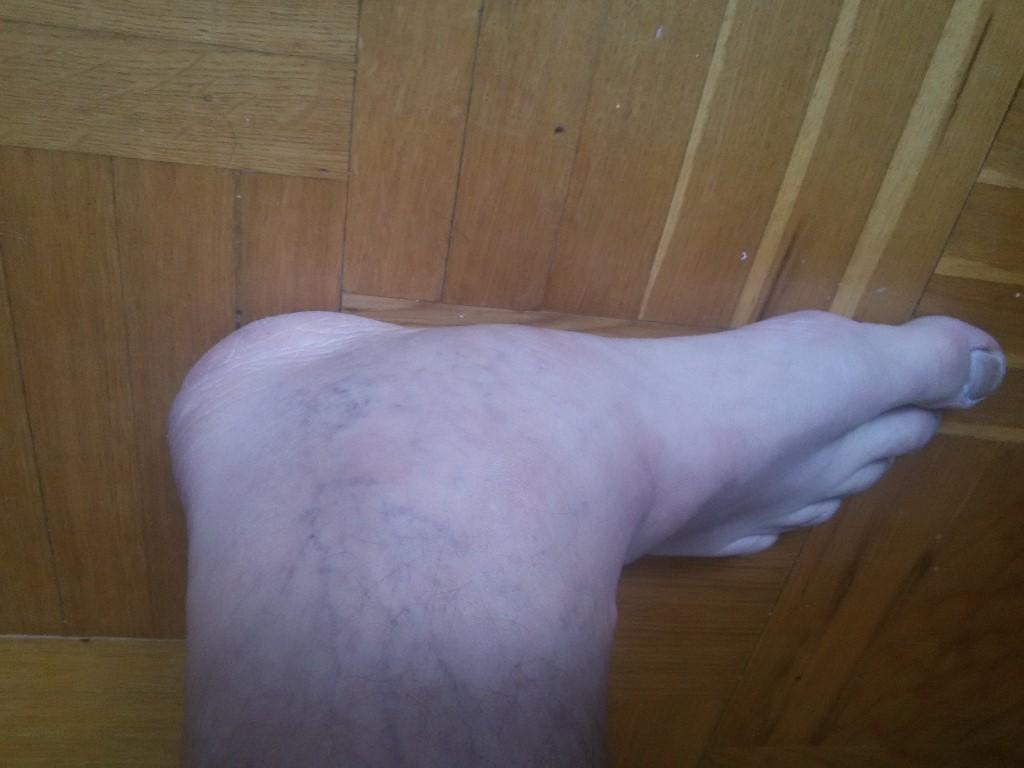 Опухла на ноге косточка