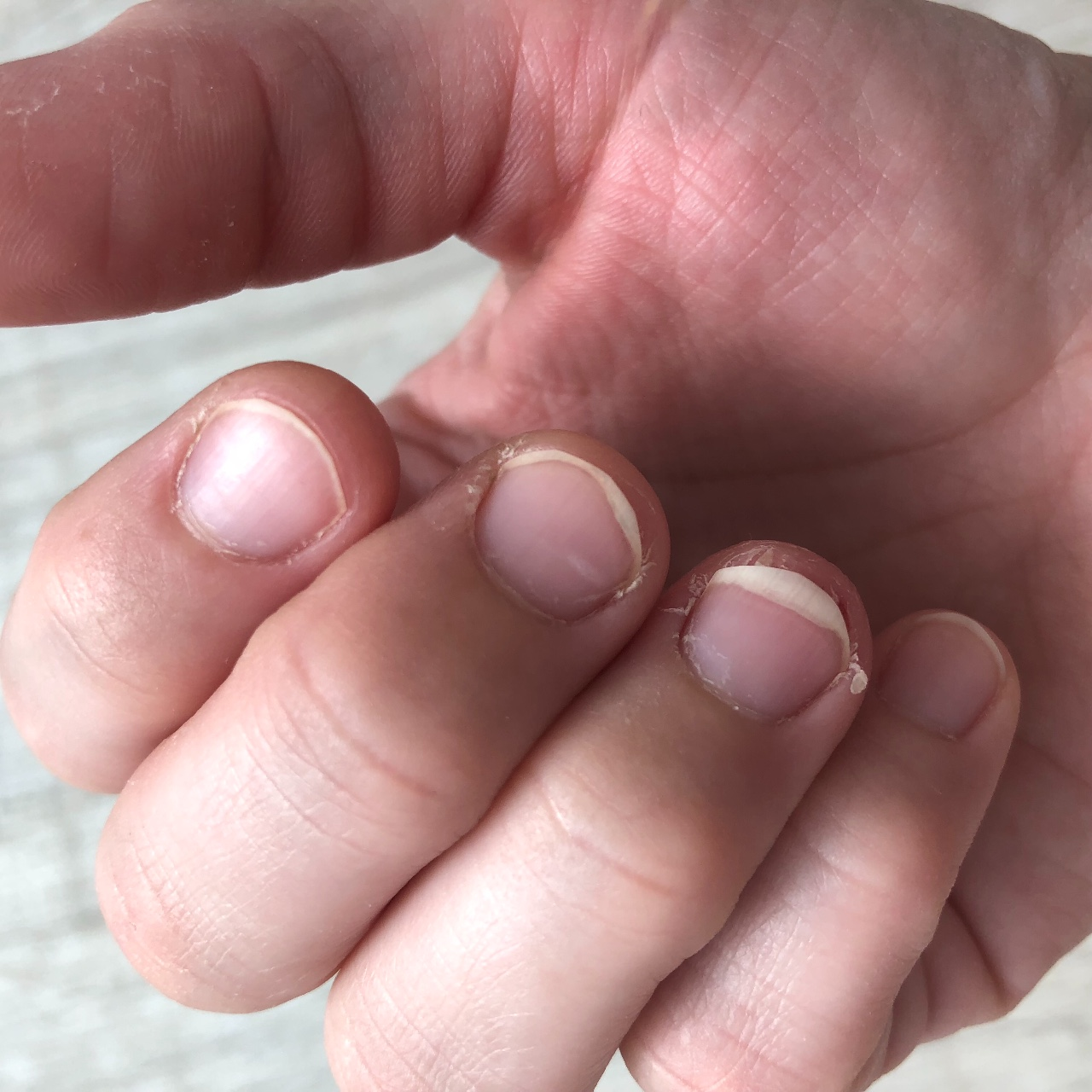 Трескается кожа около ногтей на руках фото