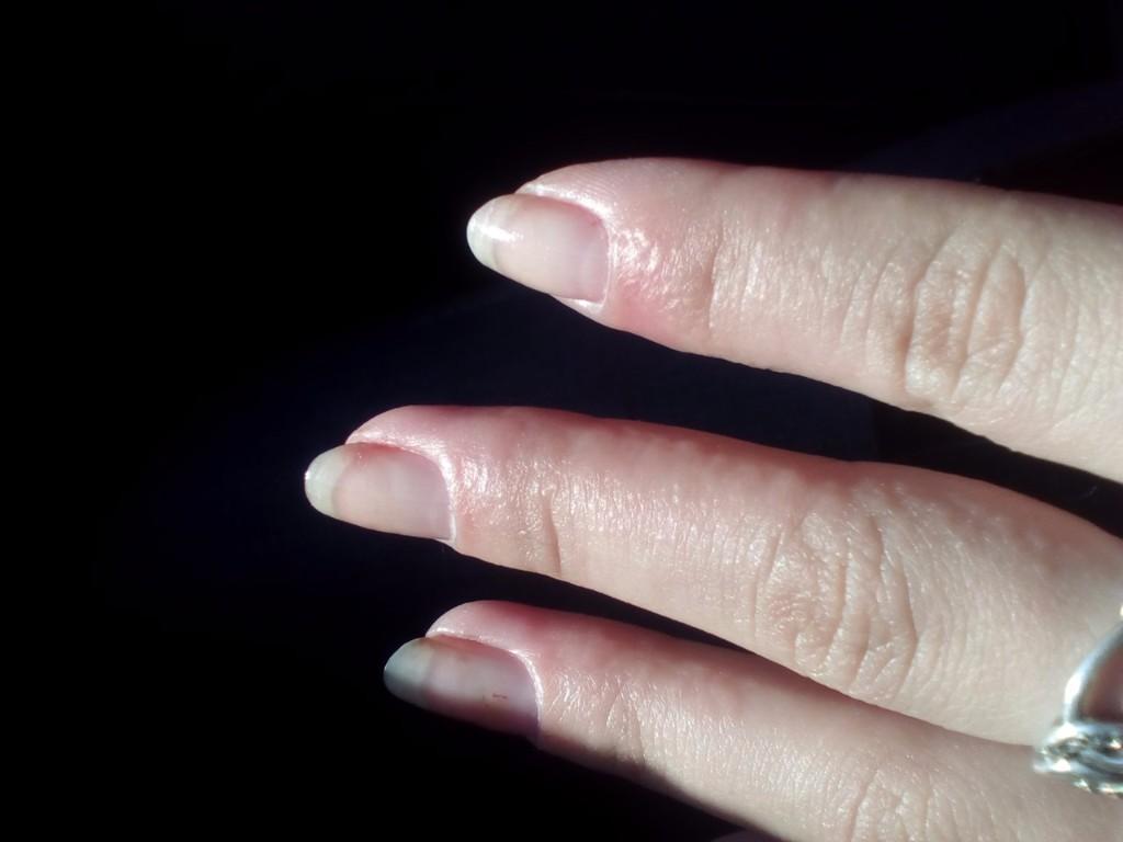 аллергия после таблеток