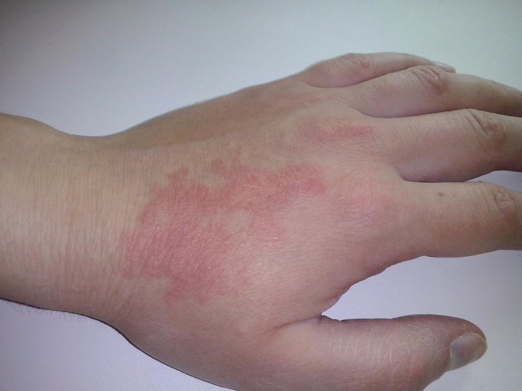 Лечение цыпок на руках в домашних условиях  472