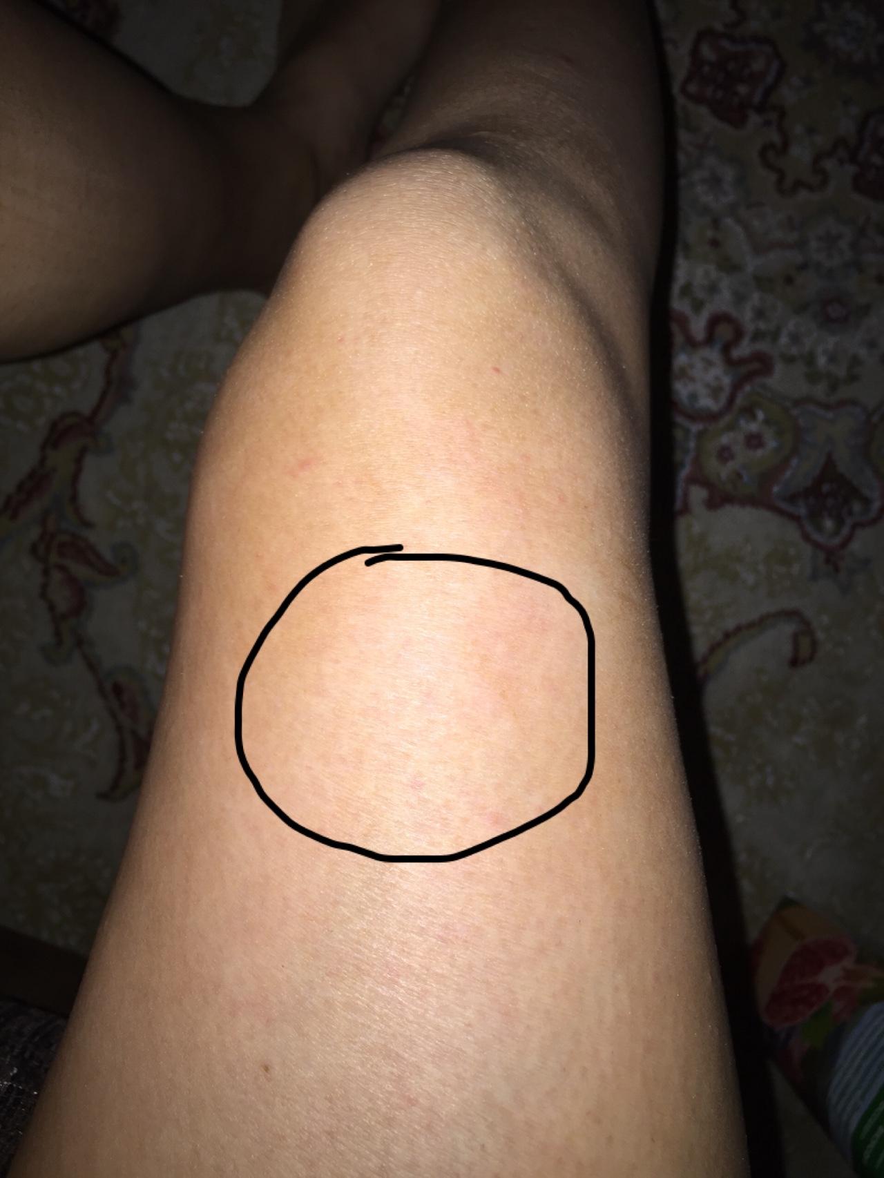 Шишка на ноге возле щиколотки