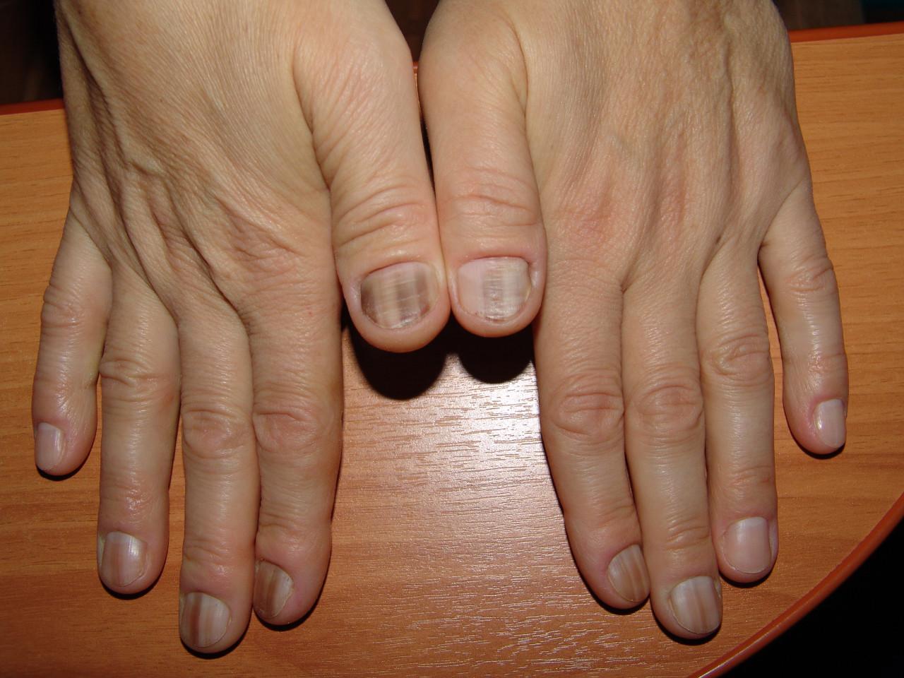 Формы ногтей при различных заболеваниях. Изменения размера и внешнего 5