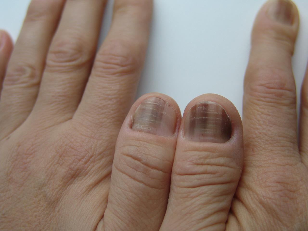 Почему темнеют ногти на руках фото