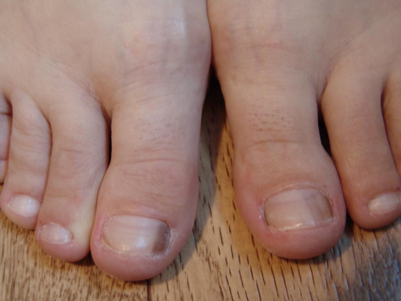 Темнеет ноготь на большом пальце ноги причины