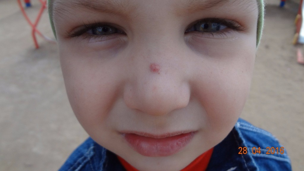 Прыщик в носу у ребенка 52