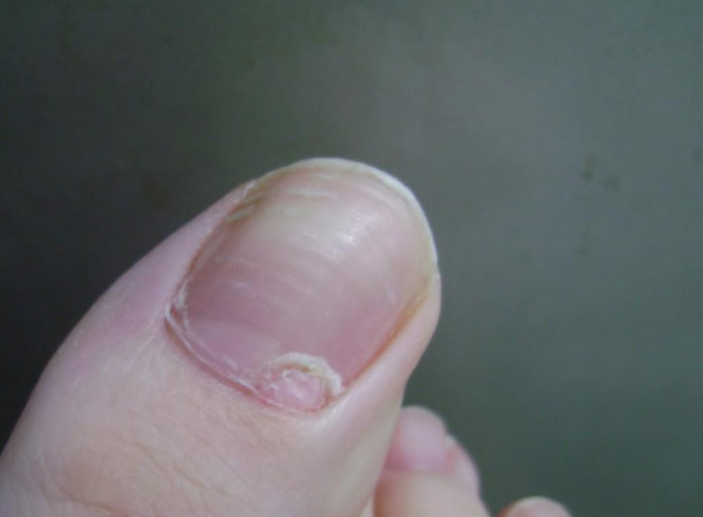 Причины отслоения ногтя