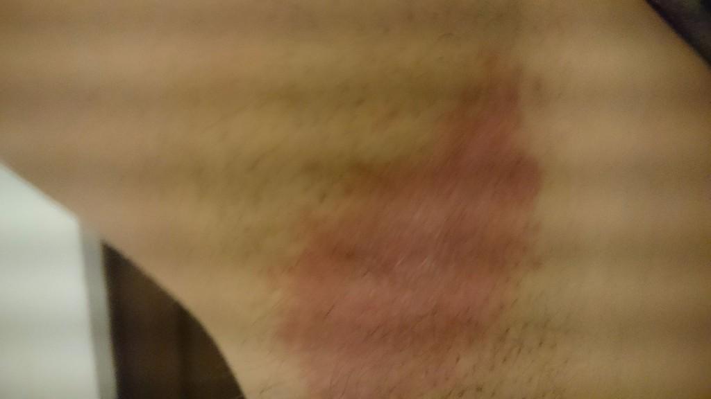 На ноге появились коричневые пятна - e972d