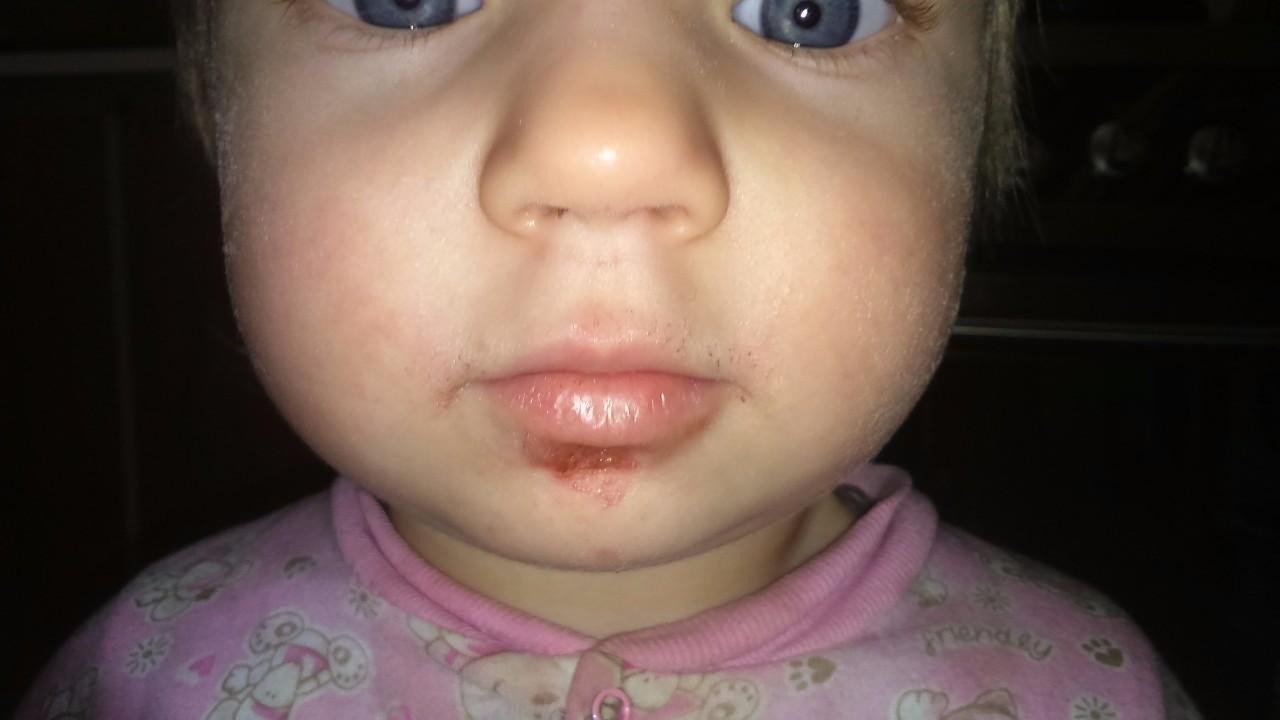 сыпь от глистов на лице