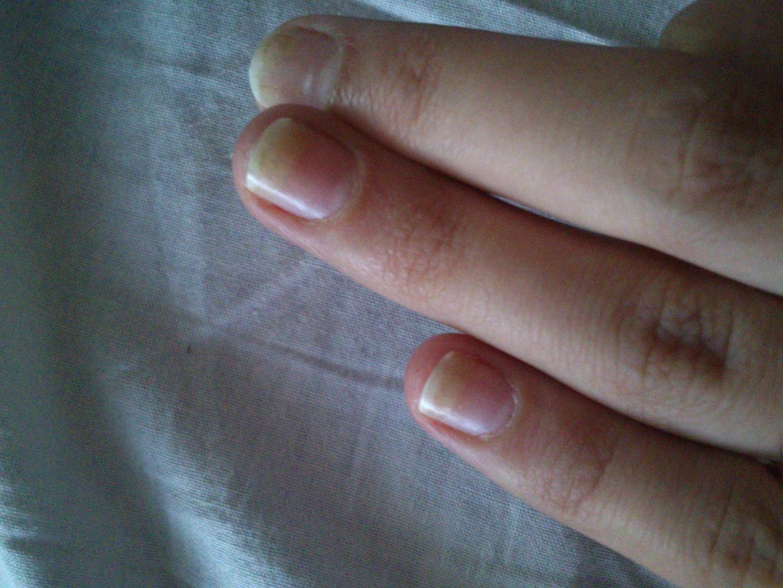 Педикюр На Короткие Ногти Фото