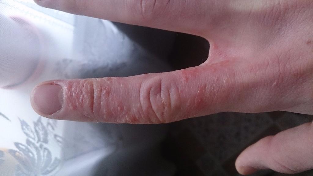 Гемолитическая болезнь новорожденного анемия лечение